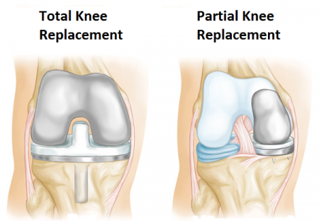 What are Types of Orthopedic Surgery?