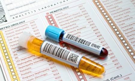 Medical Checkup Germany