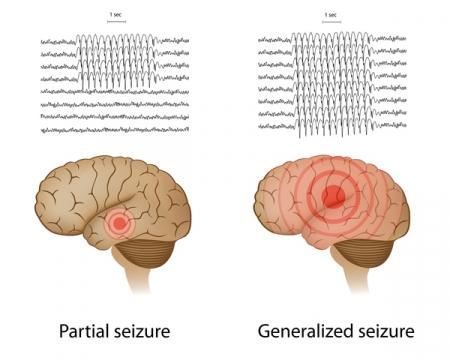 Epilepsy Treatment in Germany