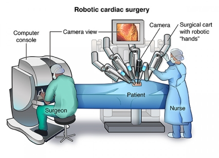 Tools used for Heart Surgery in India