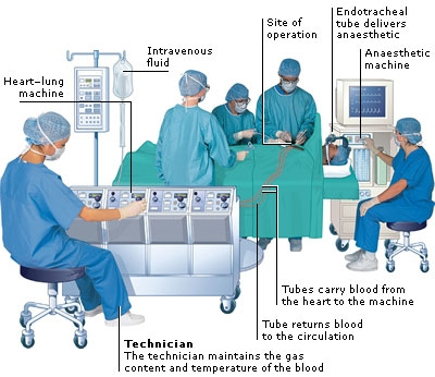 What Are Heart Surgery Techniques?